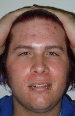 Can Cipro Cause Acne